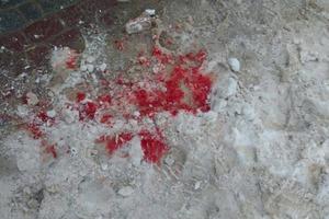 В Тернополе ножом ранили экс-депутата горсовета