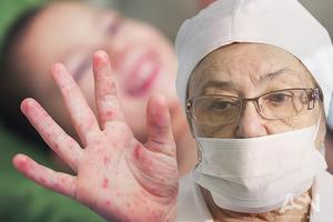 Медики назвали области Украины, в которых пока что нет кори