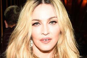 Мадонна шокировала новой подтяжкой лица