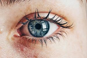Признаком диабета назвали неприятные симптомы в глазах