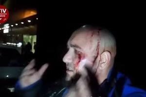 Возле метро в Киеве произошла стрельба, есть пострадавшие