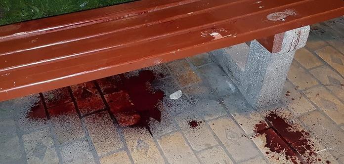 У Києві на Золотих воротах сталася різанина, загинув чоловік