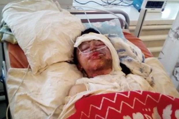 П'яний чоловік налив дружині в рот бензину і підпалив на Кіровоградщині