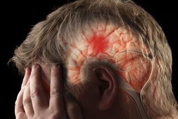 За месяц до инсульта: Какие симптомы сигнализируют об опасной болезни заранее