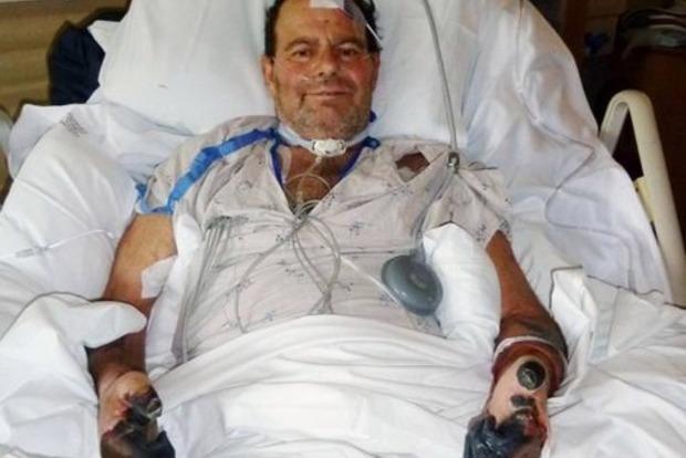 Хозяин заразился чумой от кота и остался без пальцев рук и ног