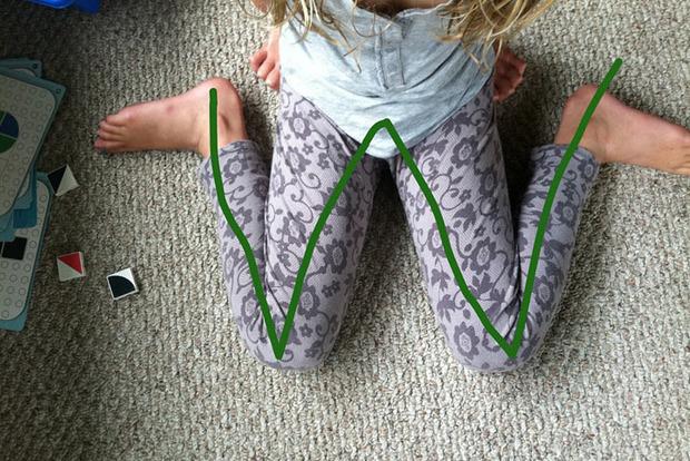 Педиатры рассказали о позе, в которой ни в коем случае нельзя сидеть детям