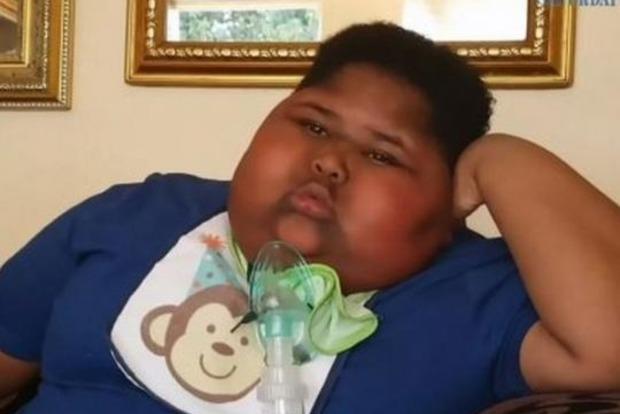 Умер мальчик, который постоянно ел. Даже туалетную бумагу