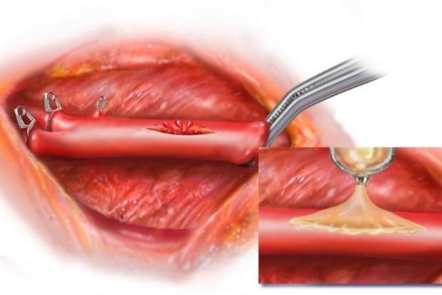Придуманий медичний клей, який миттєво стягує рану без ниток і скоб