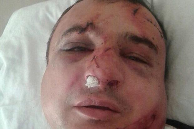 В Киеве жестоко избит знаменитый луганский сепаратист