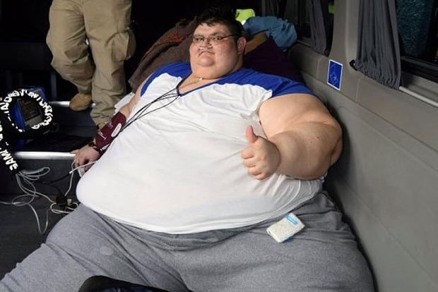 Самому толстому человеку в мире сделали операцию по шунтированию желудка