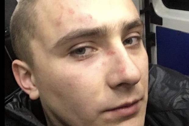 Неизвестные напали на экс-главу одесского «Правого сектора»