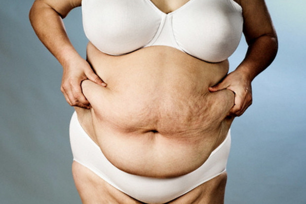 Ученые выяснили первопричину ожирения
