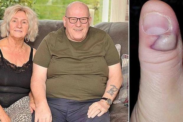 Привычка грызть ногти едва не убила 57-летнего мужчину