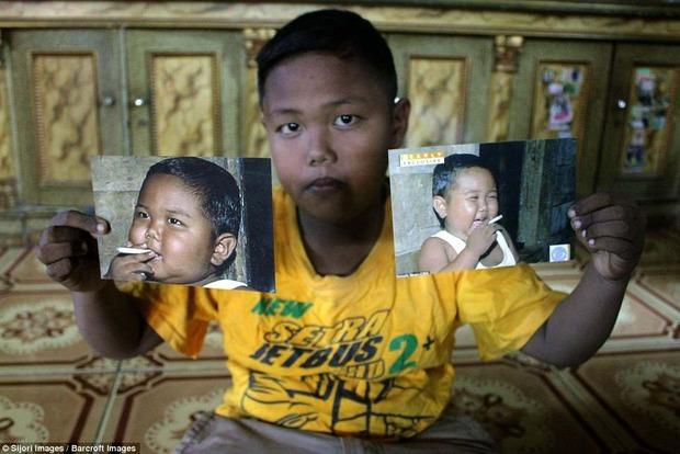 Самый юный в мире курильщик в пять лет бросил эту вредную привычку