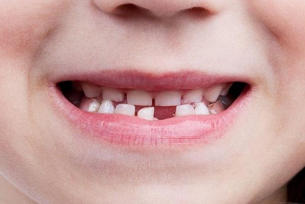 Молочные зубы расскажут, будут ли у ребенка психические отклонения