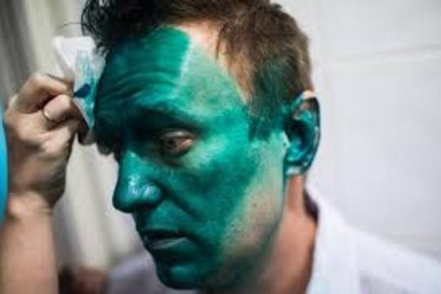 Российскому оппозиционеру Навальному прооперировали глаз в Барселоне