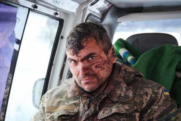 Боевики «ЛНР» взяли в плен раненого бойца ВСУ. Появилось видео