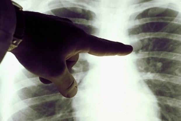 Врачи перечислили шесть ключевых признаков бессимптомной пневмонии