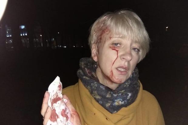 Жестоко избили полтавскую судью, выступившую против мэра города