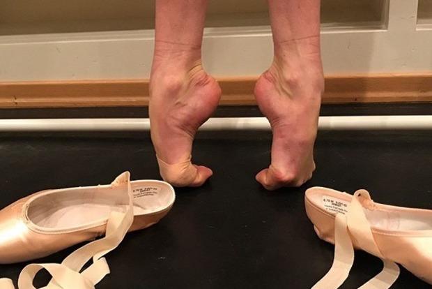 Ногти с йодом. Волочкова неприятно поразила деформированными ногами