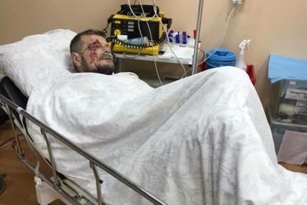 Мосийчук сказал, что за ним следили в день покушения
