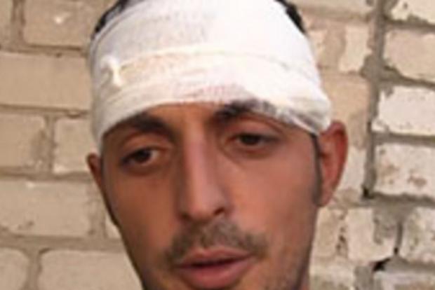 Боевики рассказали, кто уничтожил террориста «Гиви»