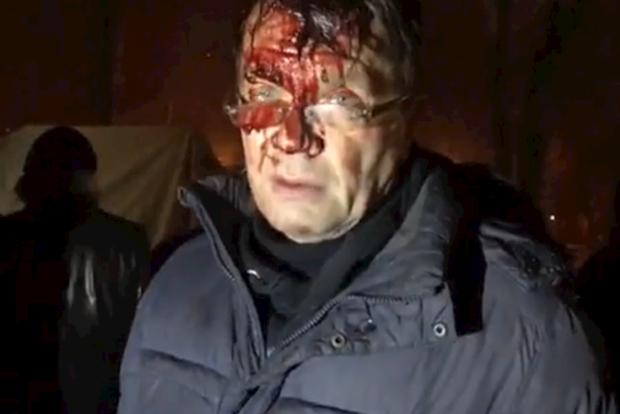 Поліція заявила, щоприхильники Саакашвілі втаборі спровокували напад