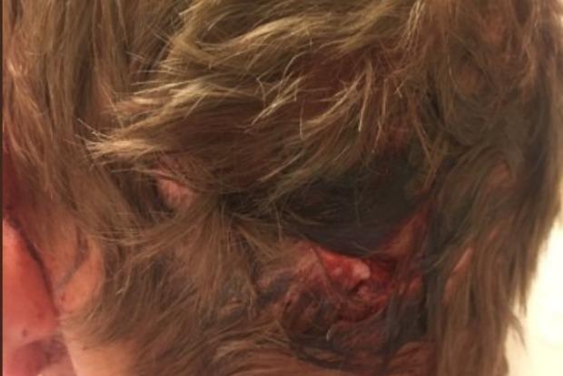 Американский юноша выжил после того, как медведь укусил его за голову