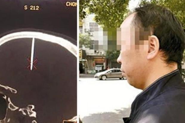 Мужчина месяц не замечал, что в голове торчит 5-сантиметровый гвоздь