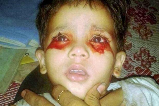 Индийская девочка, плачущая кровью, поставила врачей в тупик