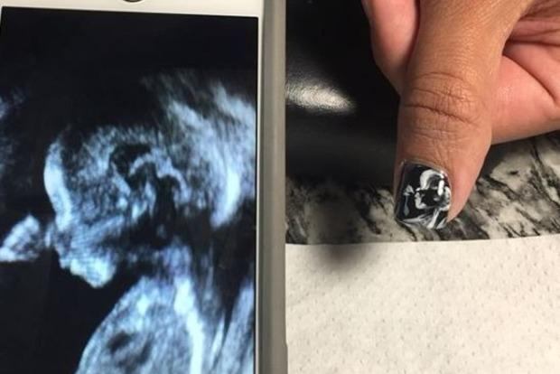 Новая мода в Instagram: УЗИ ребенка на ногте