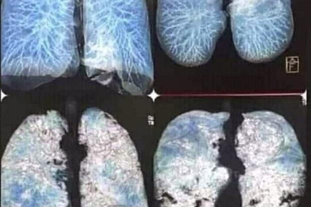 Украинские медики показали фото пораженных коронавирусом легких.