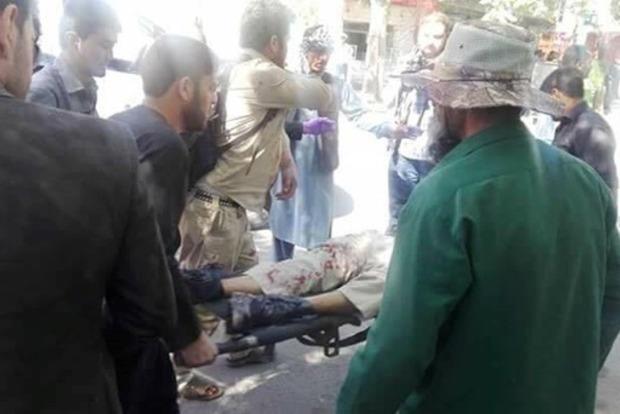 Взрыв в Кабуле: количество жертв выросло до 80 человек