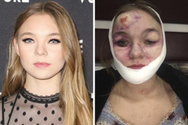 Зірка Дедпула залишилася з понівеченим обличчям після травми на знімальному майданчику (18+)