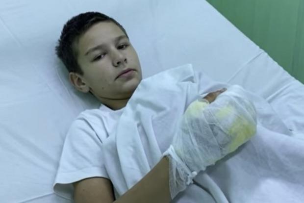 Подожженный мальчик из Бердянска рассказал, что друзья заставили выбирать между огнем и ударами по голове