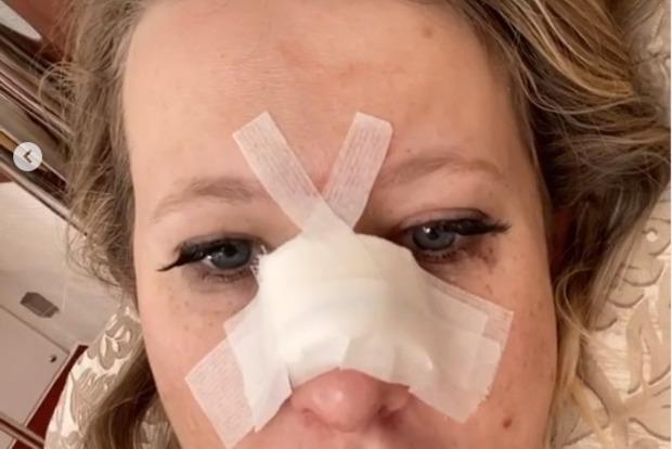 Ксения Собчак утверждает, что сломала нос сама, но поклонники не верят