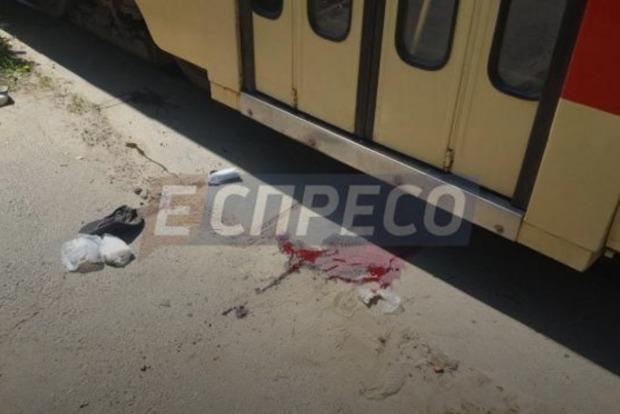 Трамвай в Киеве отрезал пальцы пешеходу, перебегавшему пути