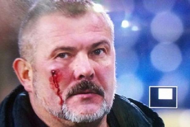 Нардепу Березе фанаты ФК Днепр разбили лицо в кровь