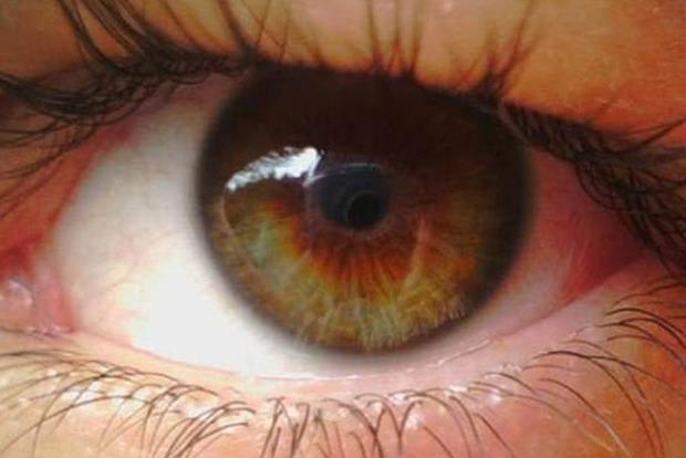 Яркий экран телефона продырявил девушке глаза