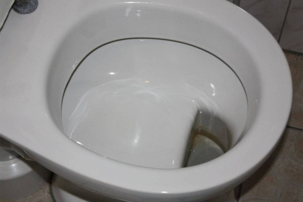 Курьез в туалете: киевлянин застрял в унитазе