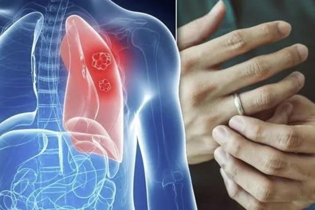 Рак легких научились определять по кончикам пальцев