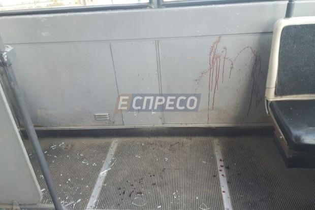 В Киеве троллейбус врезался в грузовик, пострадал молодой парень