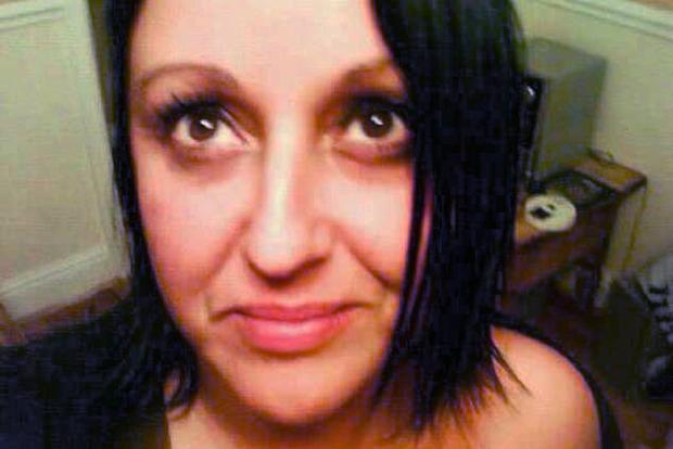 Жертва пыток. Пациентка заплатила 2 тыс. долларов за ямочки на щеках, но получила ужас