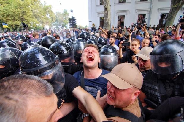 Під час сутичок вОдесі постраждали 36 правоохоронців