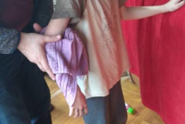 Засунул в батарею. В Киеве спасатели освободили необычного пленника