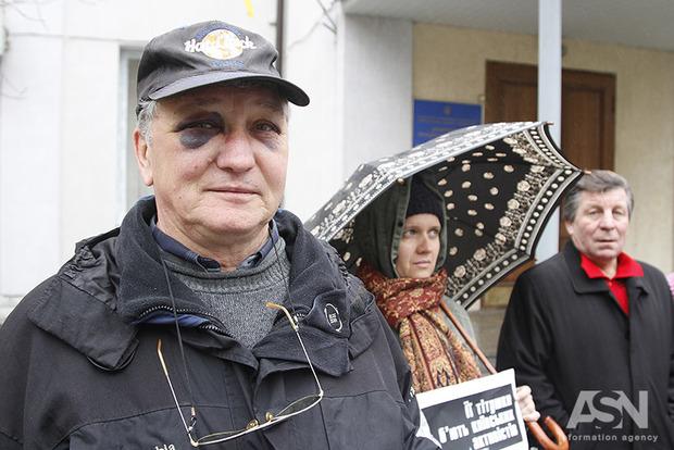 Протестующие против постройки McDonalds вместо сквера заявили об избиении