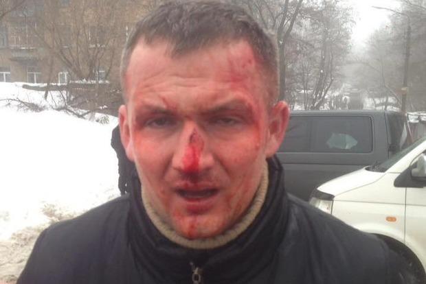 Полиция об избиении нардепа Левченко: Пытался бросить коктейль Молотова