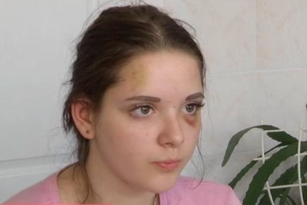 Избиение школьницы: участнице черниговской банды объявили подозрение