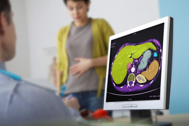 Доктора нашли новый и простой способ лечения ожирения печени