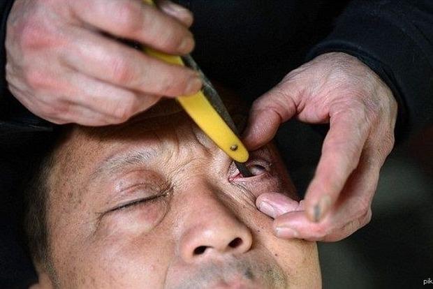 Бритье глаза в Китае попало на видео